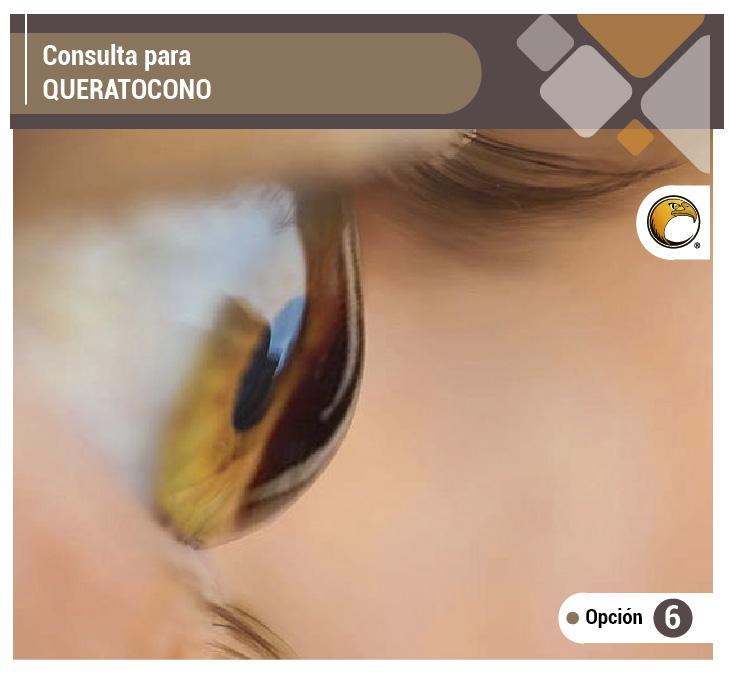 19ee44e1e3897 Guía de consulta   Queratocono - Opticlínicas