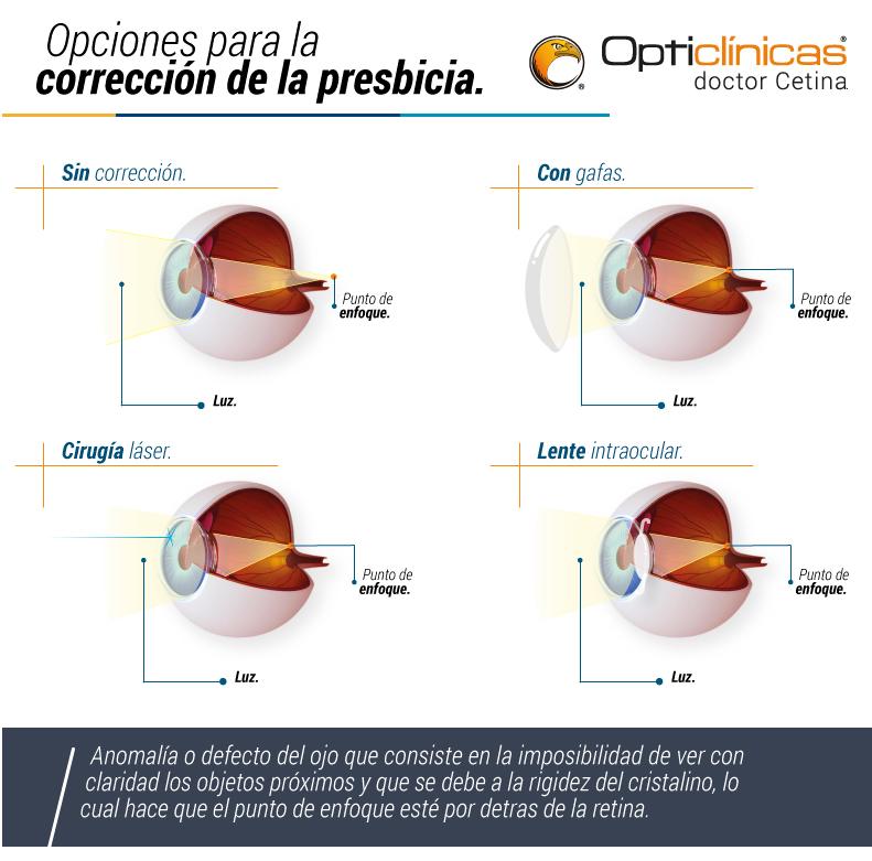 e51f6cfbd6 como-corregir-la-presbicia - Opticlínicas