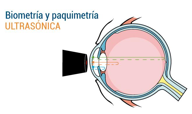 ae68bec36e BIOMETRIA-Y-PAQUIMETRIA-ULTRASONICA - Opticlínicas
